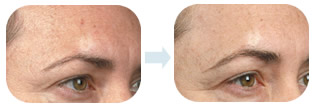 rf change after treatment, wrinkle removes,and eye skin lifted